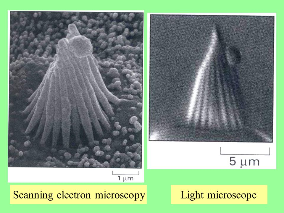 Scanning electron microscopy Light microscope