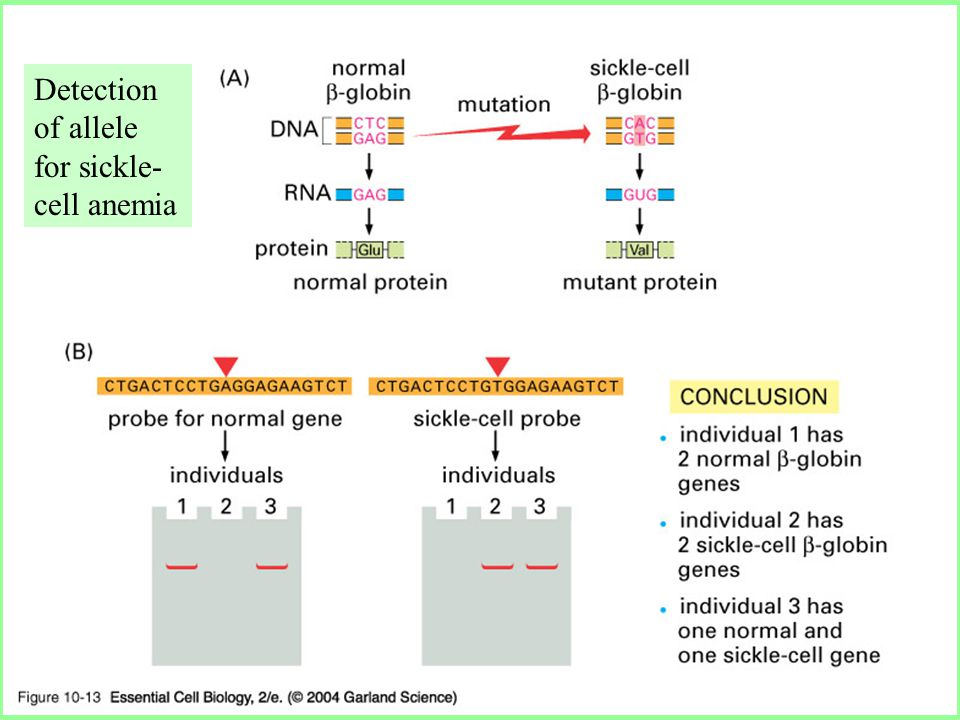 10_13_hybridization.jpg Detection of allele for sickle- cell anemia