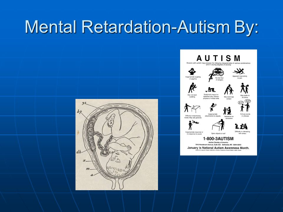 Mental Retardation-Autism By: