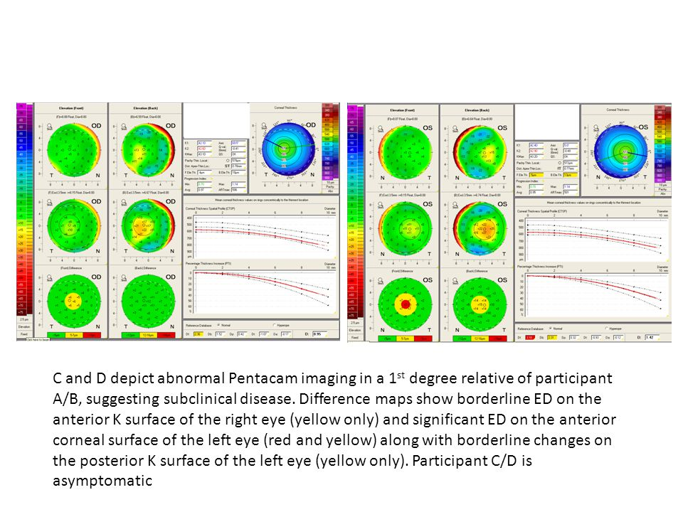 C and D depict abnormal Pentacam imaging in a 1 st degree relative of participant A/B, suggesting subclinical disease.