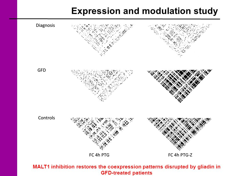 Expression and modulation study MALT1 inhibition restores the coexpression patterns disrupted by gliadin in GFD-treated patients