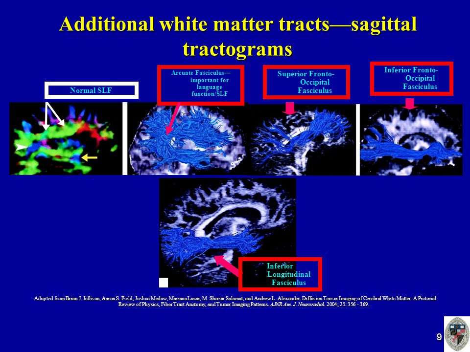 9 Additional white matter tracts—sagittal tractograms Normal SLF Brian J.