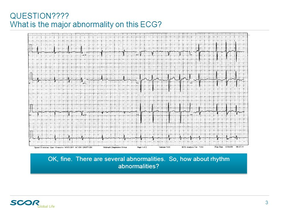 """Week 13 in the """"Case of the Week"""" series QUESTION???? What is the major abnormality on this ECG? 3 OK, fine. There are several abnormalities. So, how"""
