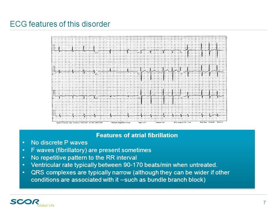 Features Features of atrial fibrillation No discrete P waves F waves (fibrillatory) are present sometimes No repetitive pattern to the RR interval Ventricular rate typically between 90-170 beats/min when untreated.