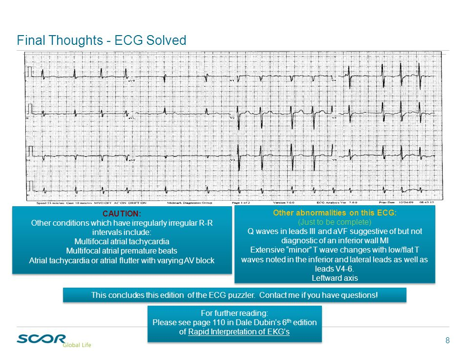 Week13 in the Case of the Week series CAUTION: Other conditions which have irregularly irregular R-R intervals include: Multifocal atrial tachycardia Multifocal atrial premature beats Atrial tachycardia or atrial flutter with varying AV block CAUTION: Other conditions which have irregularly irregular R-R intervals include: Multifocal atrial tachycardia Multifocal atrial premature beats Atrial tachycardia or atrial flutter with varying AV block Final Thoughts - ECG Solved 8 This concludes this edition of the ECG puzzler.