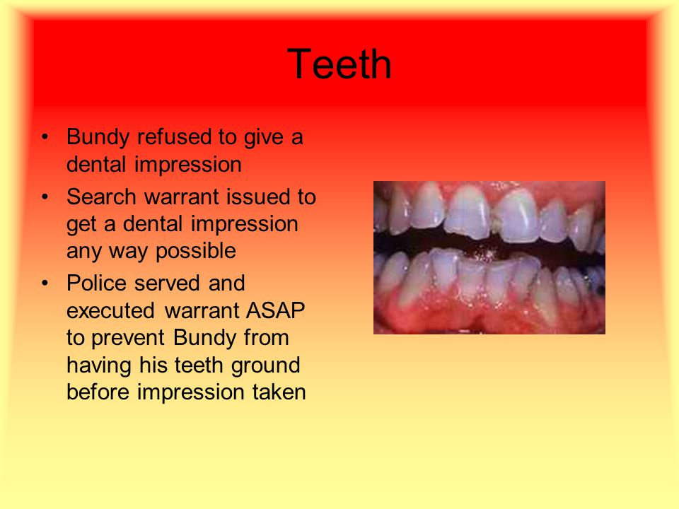 Teeth Bundy refused to give a dental impression Search warrant issued to get a dental impression any way possible Police served and executed warrant ASAP to prevent Bundy from having his teeth ground before impression taken