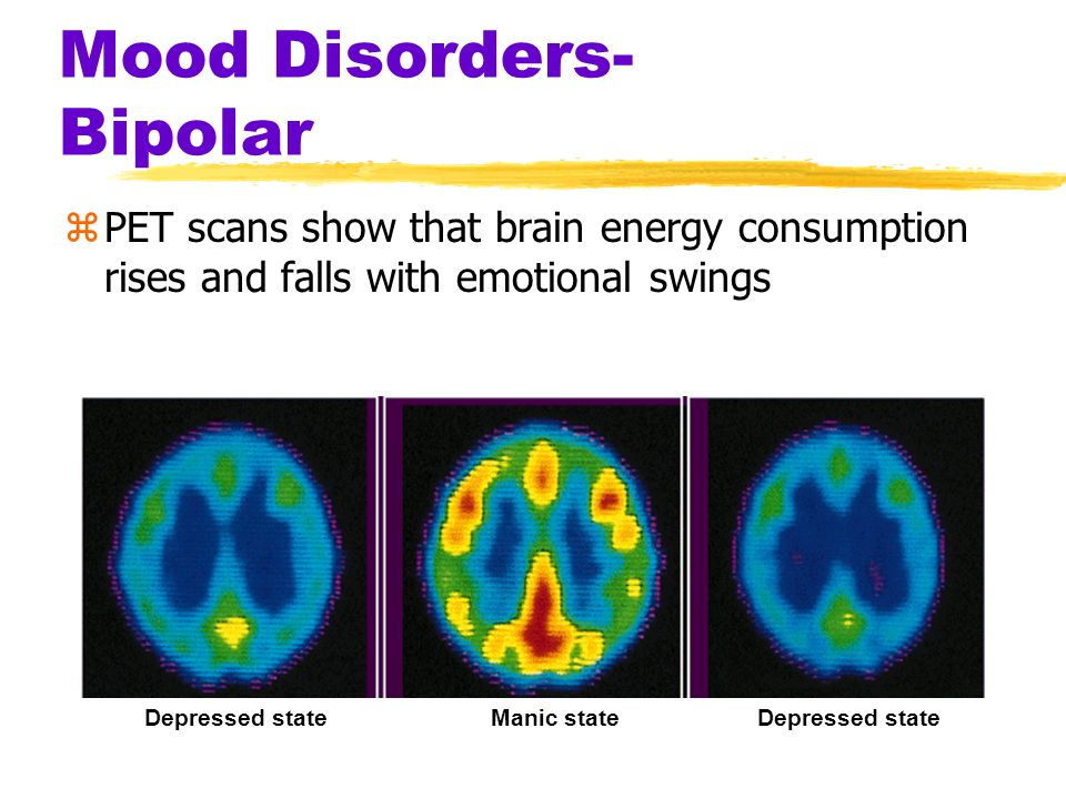 Mood Disorders- Bipolar zPET scans show that brain energy consumption rises and falls with emotional swings Depressed stateManic stateDepressed state
