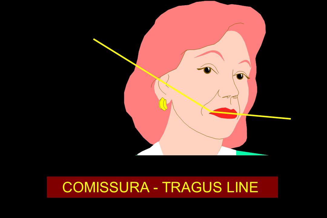 COMISSURA - TRAGUS LINE