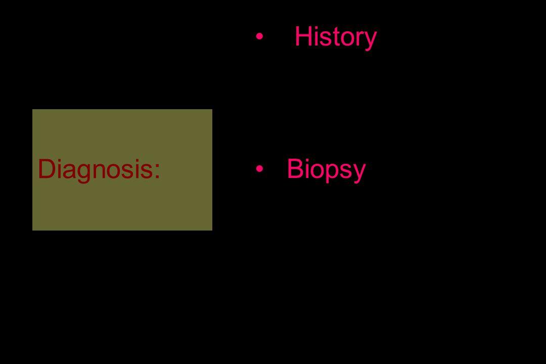 Diagnosis: History Etyoloji Premalign lezyolar Yaş / cinsiyet Lokalizasyon Biopsy Küretaj Yüzeyel tıraşlama Punch biyopsi Eksizyonel biyopsi