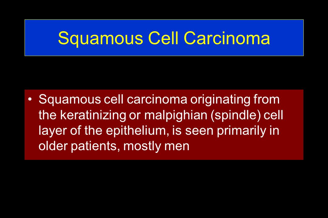 Squamous Cell Carcinoma Squamous cell carcinoma originating from the keratinizing or malpighian (spindle) cell layer of the epithelium, is seen primarily in older patients, mostly men