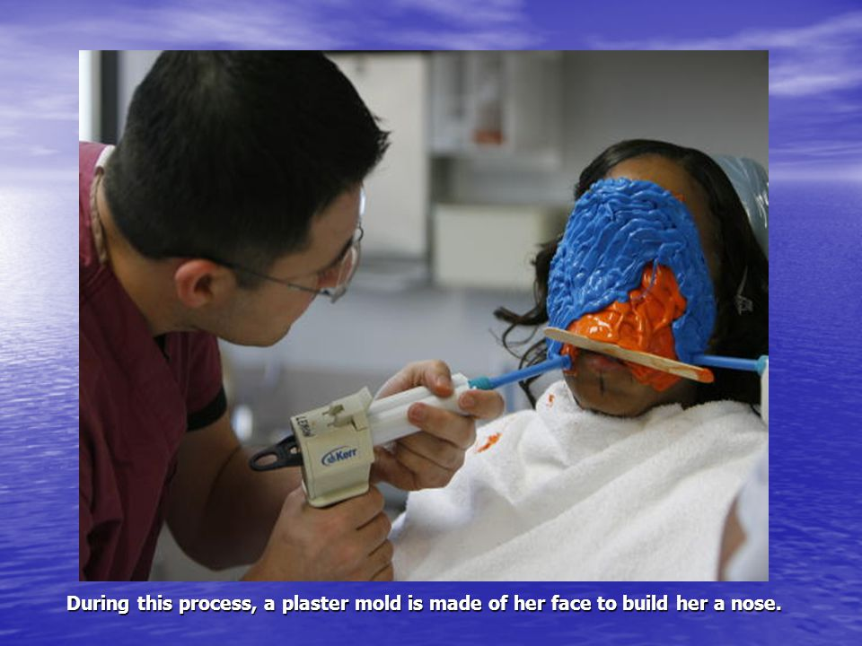 During this process, a plaster mold is made of her face to build her a nose.