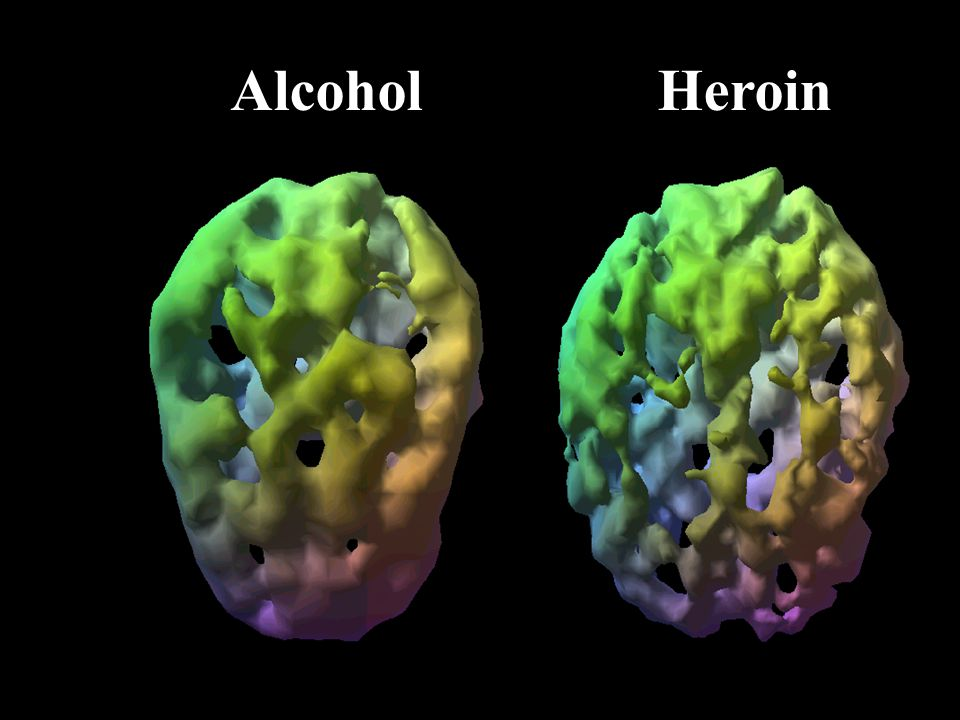 Alcohol Heroin