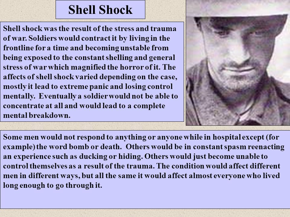 Shell Shock Shell shock was the result of the stress and trauma of war. Soldiers would contract it by living in the frontline for a time and becoming