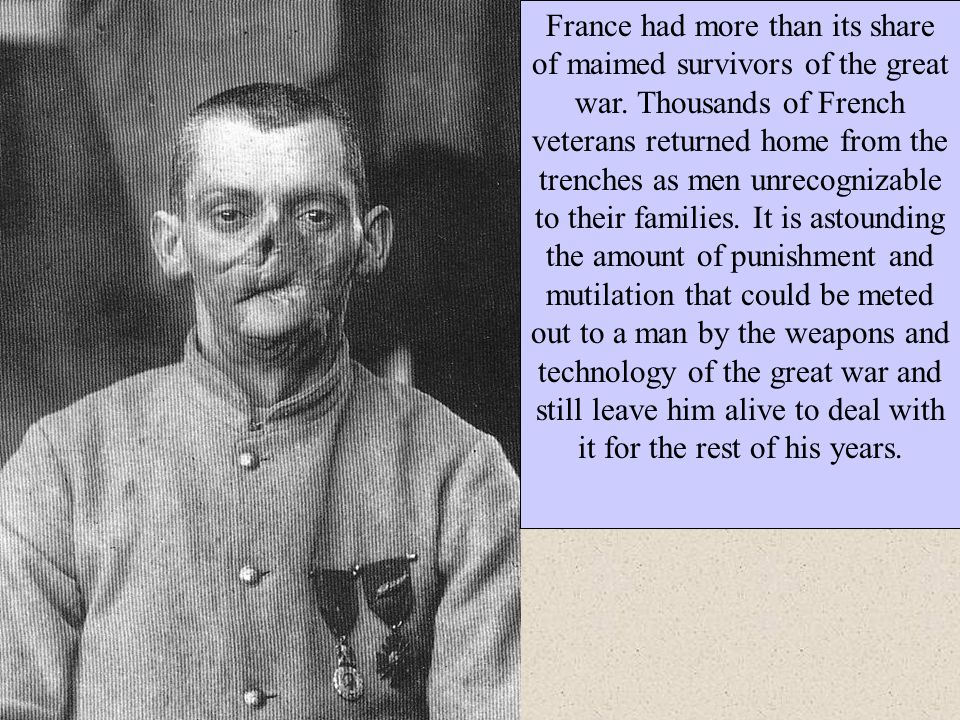 France had more than its share of maimed survivors of the great war. Thousands of French veterans returned home from the trenches as men unrecognizabl