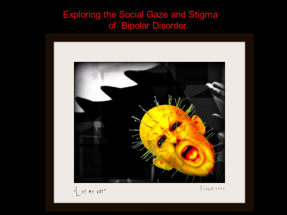 Exploring the Social Gaze and Stigma of Bipolar Disorder.