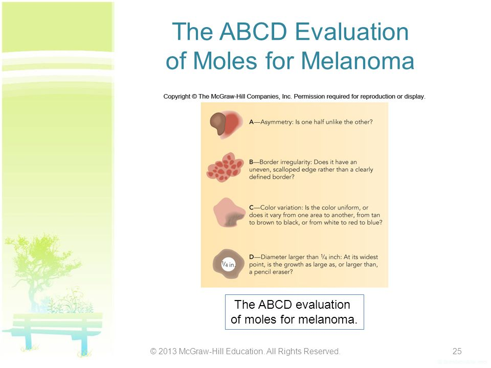 The ABCD Evaluation of Moles for Melanoma © 2013 McGraw-Hill Education. All Rights Reserved.25 The ABCD evaluation of moles for melanoma.