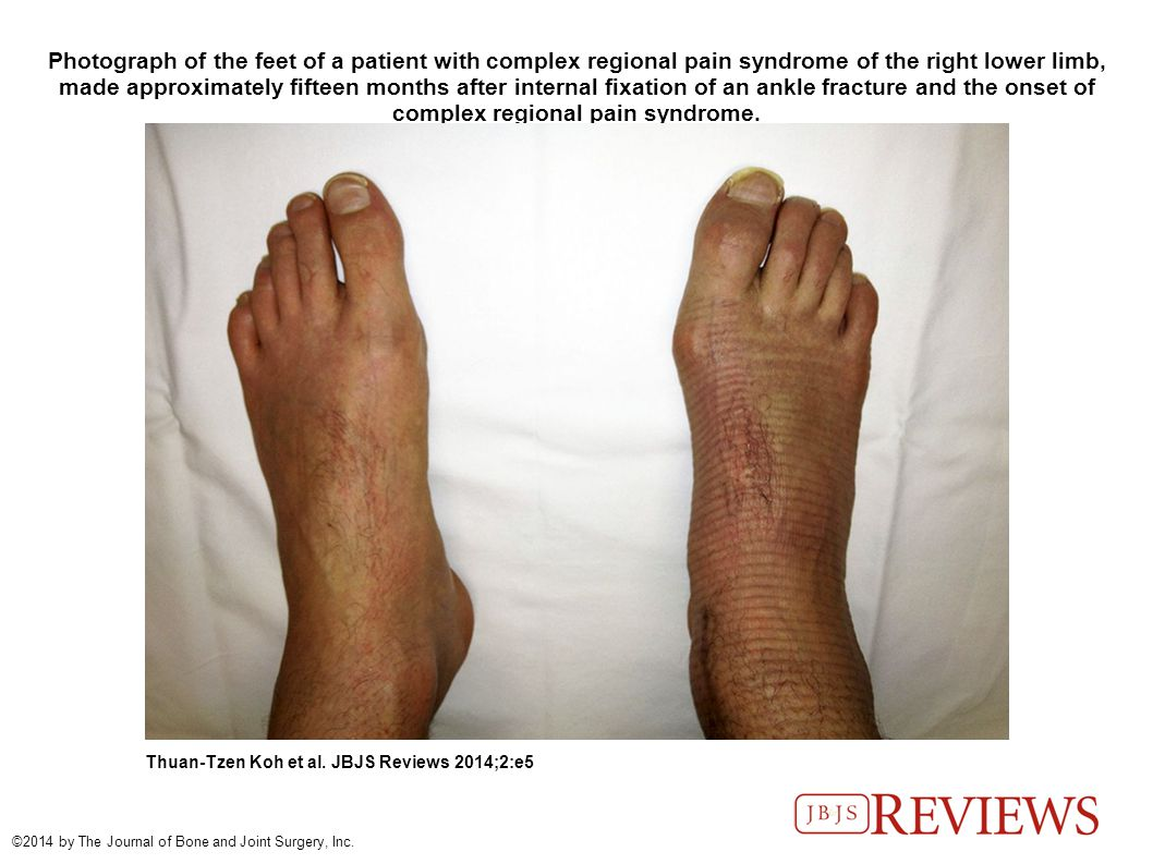Photograph of the feet of a patient with complex regional pain syndrome of the right lower limb, made approximately fifteen months after internal fixation of an ankle fracture and the onset of complex regional pain syndrome.