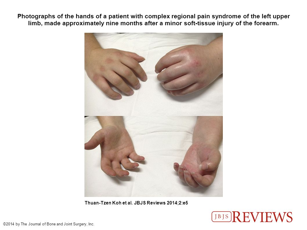 Photographs of the hands of a patient with complex regional pain syndrome of the left upper limb, made approximately nine months after a minor soft-tissue injury of the forearm.