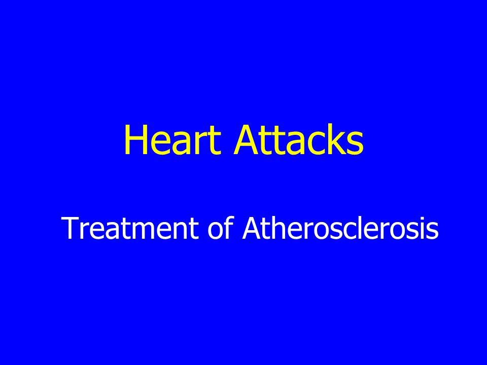 Heart Attacks Treatment of Atherosclerosis