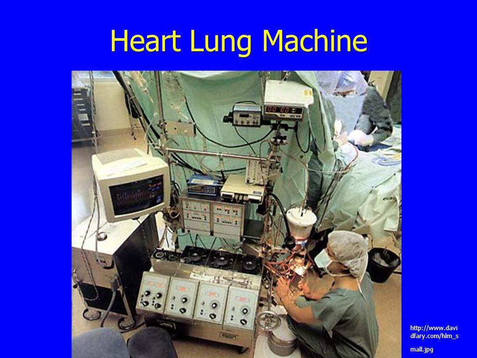 Heart Lung Machine http://www.davi dfary.com/hlm_s mall.jpg