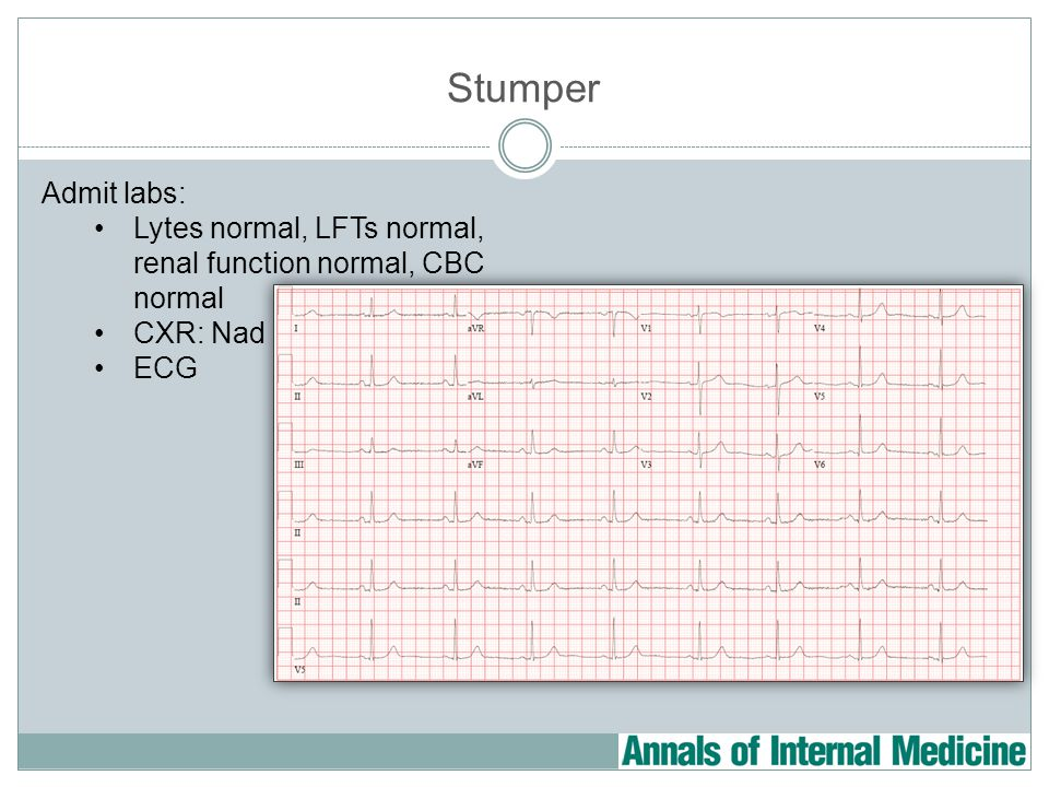 Stumper Admit labs: Lytes normal, LFTs normal, renal function normal, CBC normal CXR: Nad ECG