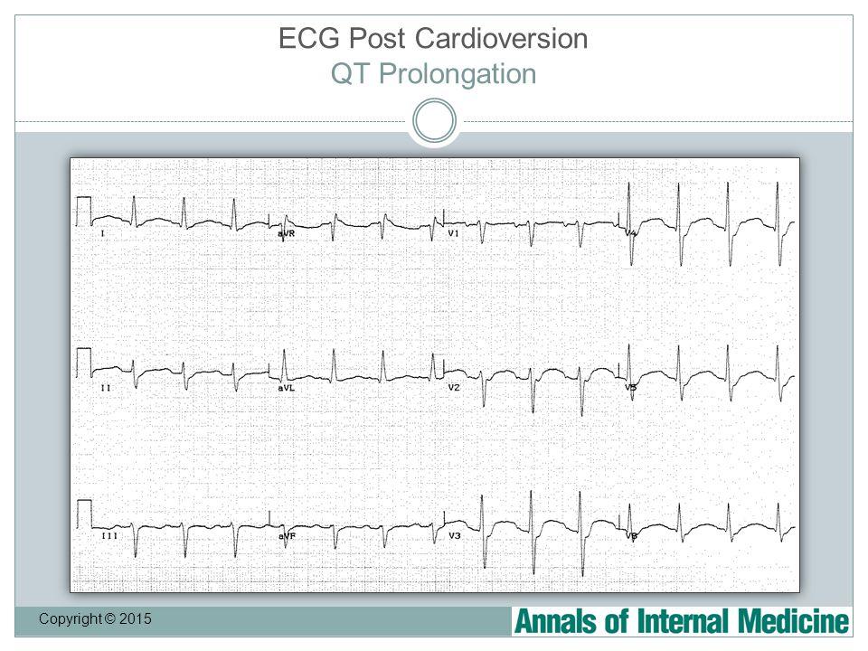 ECG Post Cardioversion QT Prolongation Copyright © 2015