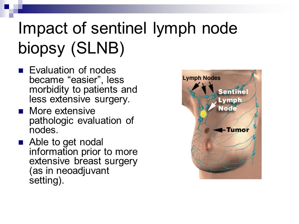 """Impact of sentinel lymph node biopsy (SLNB) Evaluation of nodes became """"easier"""", less morbidity to patients and less extensive surgery. More extensive"""