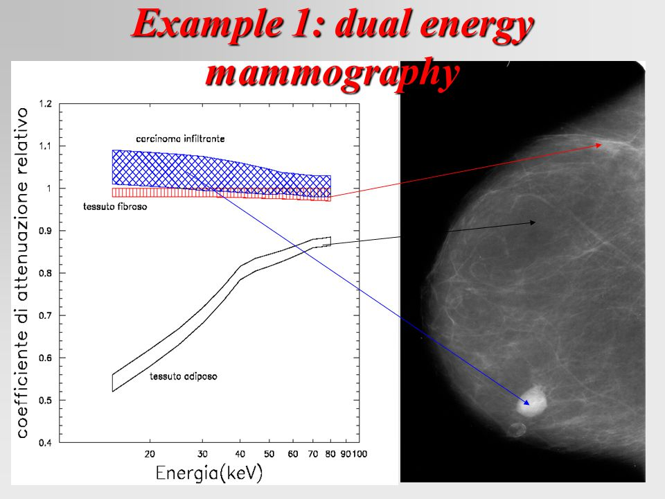 Example 1: dual energy mammography