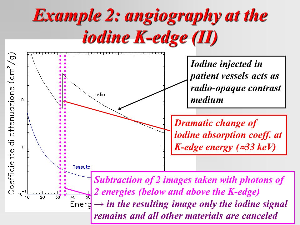 Example 2: angiography at the iodine K-edge (II) Iodine injected in patient vessels acts as radio-opaque contrast medium Dramatic change of iodine absorption coeff.