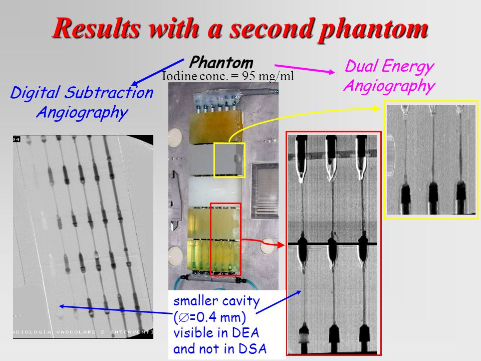 Results with a second phantom Phantom Digital Subtraction Angiography Dual Energy Angiography smaller cavity (  =0.4 mm) visible in DEA and not in DSA Iodine conc.