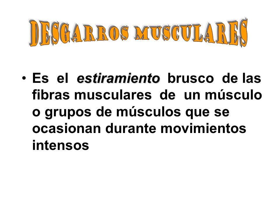 estiramientoEs el estiramiento brusco de las fibras musculares de un músculo o grupos de músculos que se ocasionan durante movimientos intensos