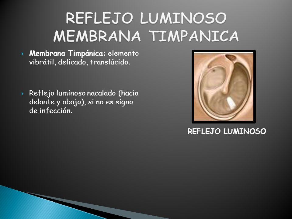  Membrana Timpánica: elemento vibrátil, delicado, translúcido.  Reflejo luminoso nacalado (hacia delante y abajo), si no es signo de infección. REFL