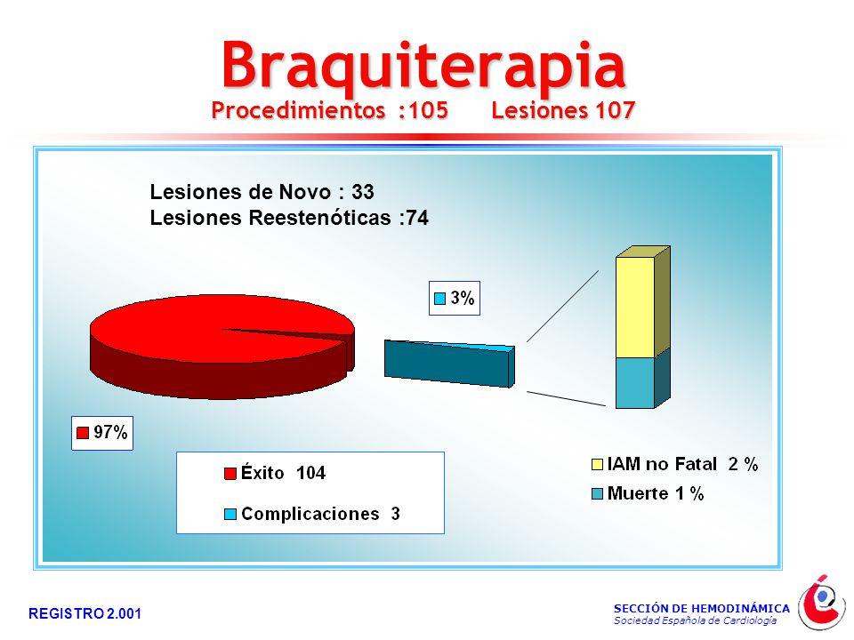 SECCIÓN DE HEMODINÁMICA Sociedad Española de Cardiología REGISTRO 2.001 Braquiterapia Procedimientos :105 Lesiones 107 Lesiones de Novo : 33 Lesiones Reestenóticas :74