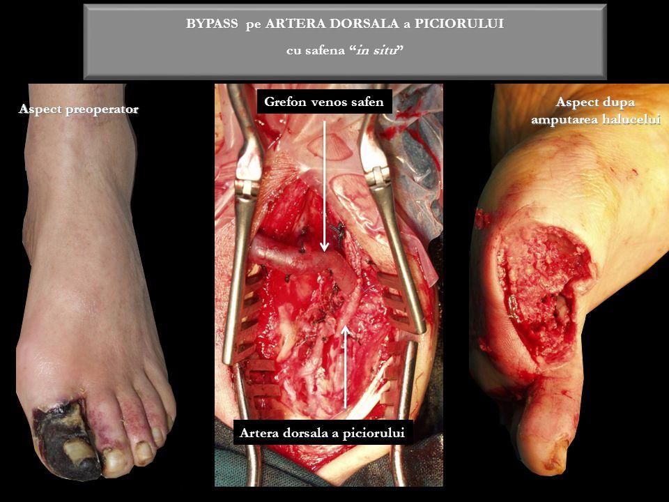 """BYPASS pe ARTERA DORSALA a PICIORULUI cu safena """"in situ"""" Grefon venos safen Artera dorsala a piciorului Aspect dupa amputarea halucelui Aspect preope"""