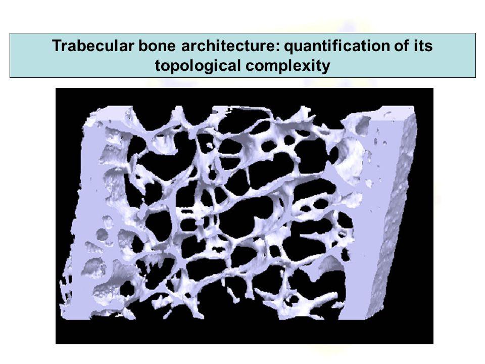 Tracking of holes in bone computational models?