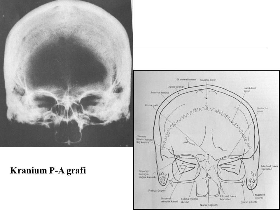 Kranium P-A grafi