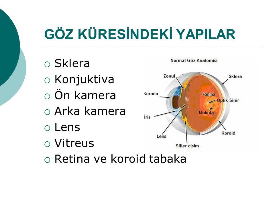 GÖZ KÜRESİNDEKİ YAPILAR  Sklera  Konjuktiva  Ön kamera  Arka kamera  Lens  Vitreus  Retina ve koroid tabaka