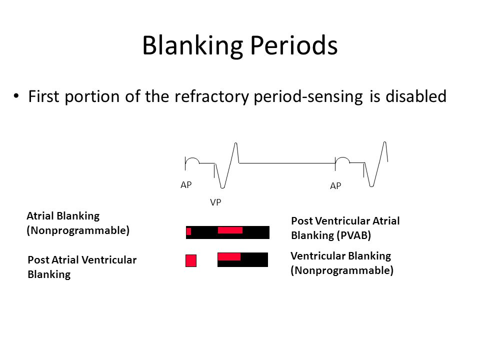 Blanking Periods First portion of the refractory period-sensing is disabled AP VP AP Post Ventricular Atrial Blanking (PVAB) Post Atrial Ventricular B