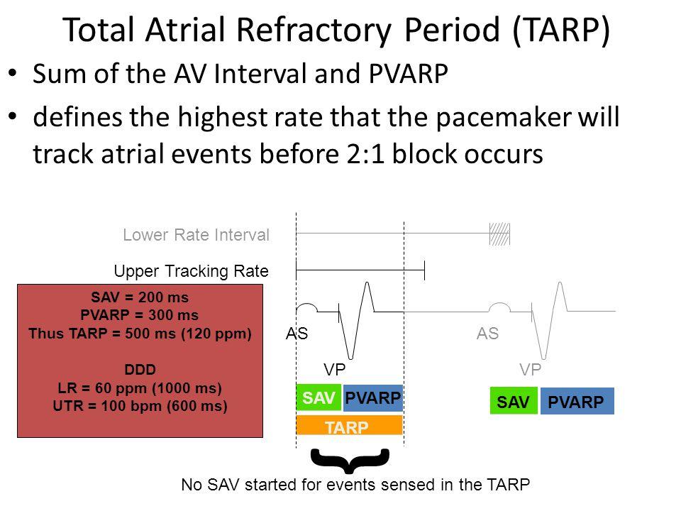 PVARP Upper Tracking Rate Lower Rate Interval { No SAV started for events sensed in the TARP AS VP SAV = 200 ms PVARP = 300 ms Thus TARP = 500 ms (120