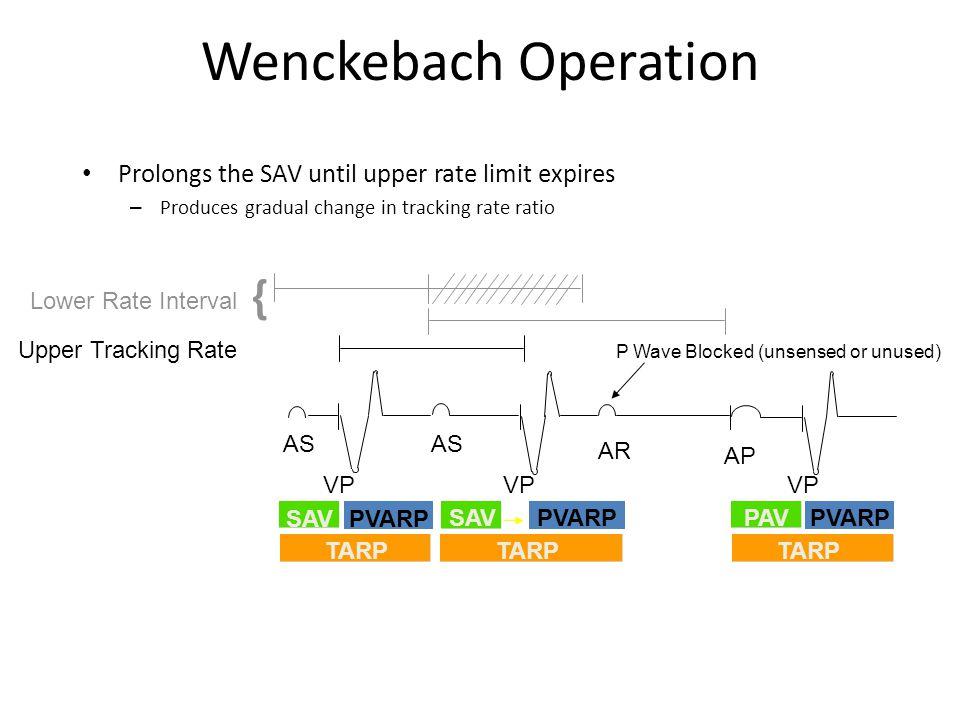 PVARP Wenckebach Operation Upper Tracking Rate Lower Rate Interval { AS AR AP VP TARP SAV PAVPVARP SAV PVARP P Wave Blocked (unsensed or unused) Prolo