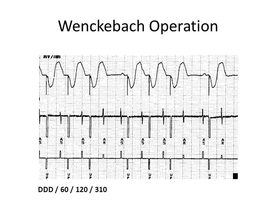 Wenckebach Operation DDD / 60 / 120 / 310