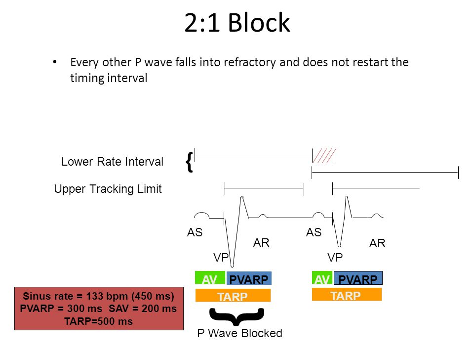 Every other P wave falls into refractory and does not restart the timing interval Upper Tracking Limit Lower Rate Interval { { P Wave Blocked AS VP AR