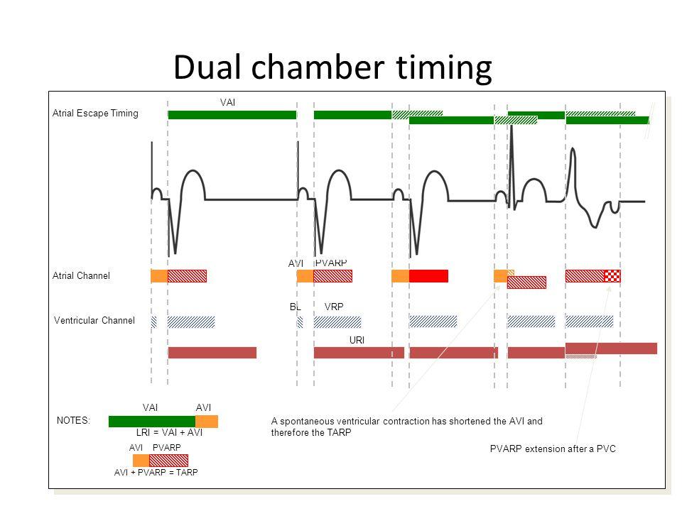 Dual chamber timing AVI + PVARP = TARP PVARP Atrial Channel Ventricular Channel VRP VAI URI Atrial Escape Timing VAIAVI NOTES: LRI = VAI + AVI AVIPVAR