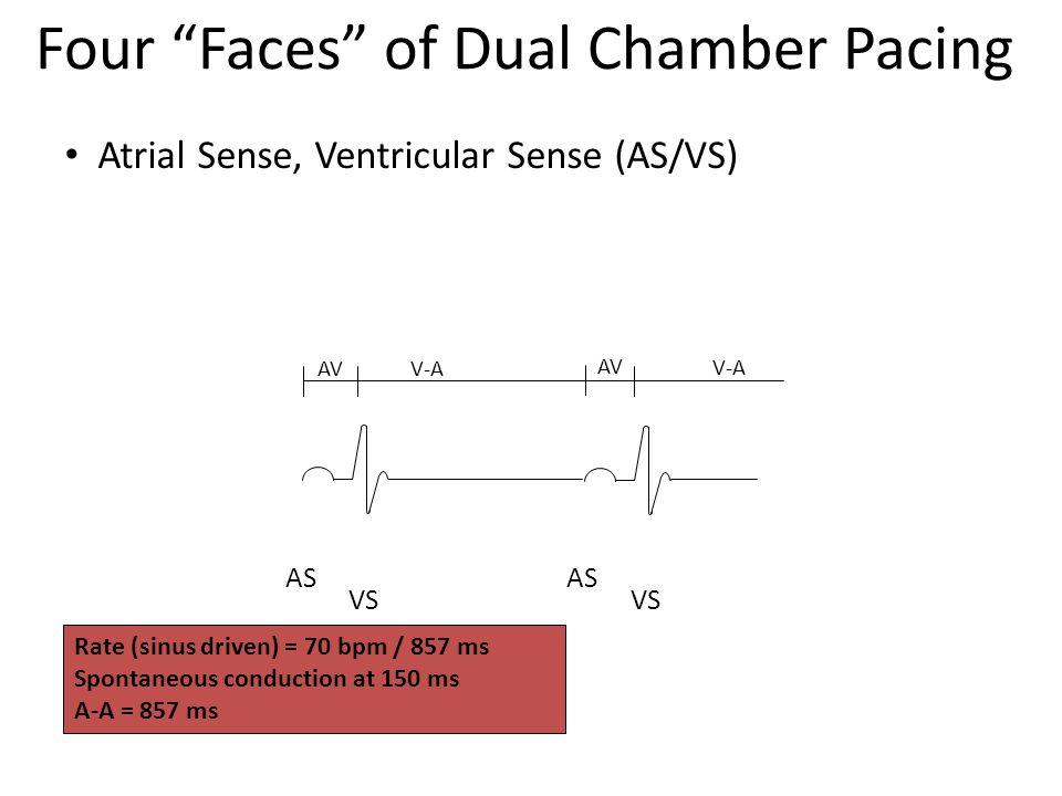 Rate (sinus driven) = 70 bpm / 857 ms Spontaneous conduction at 150 ms A-A = 857 ms AS VS AS VS V-A AV V-A Atrial Sense, Ventricular Sense (AS/VS) Fou