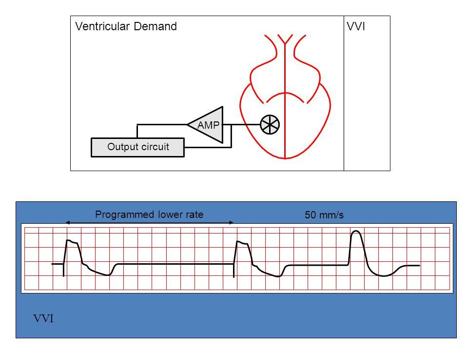 Output circuit VVI AMP Ventricular Demand Programmed lower rate 50 mm/s VVI