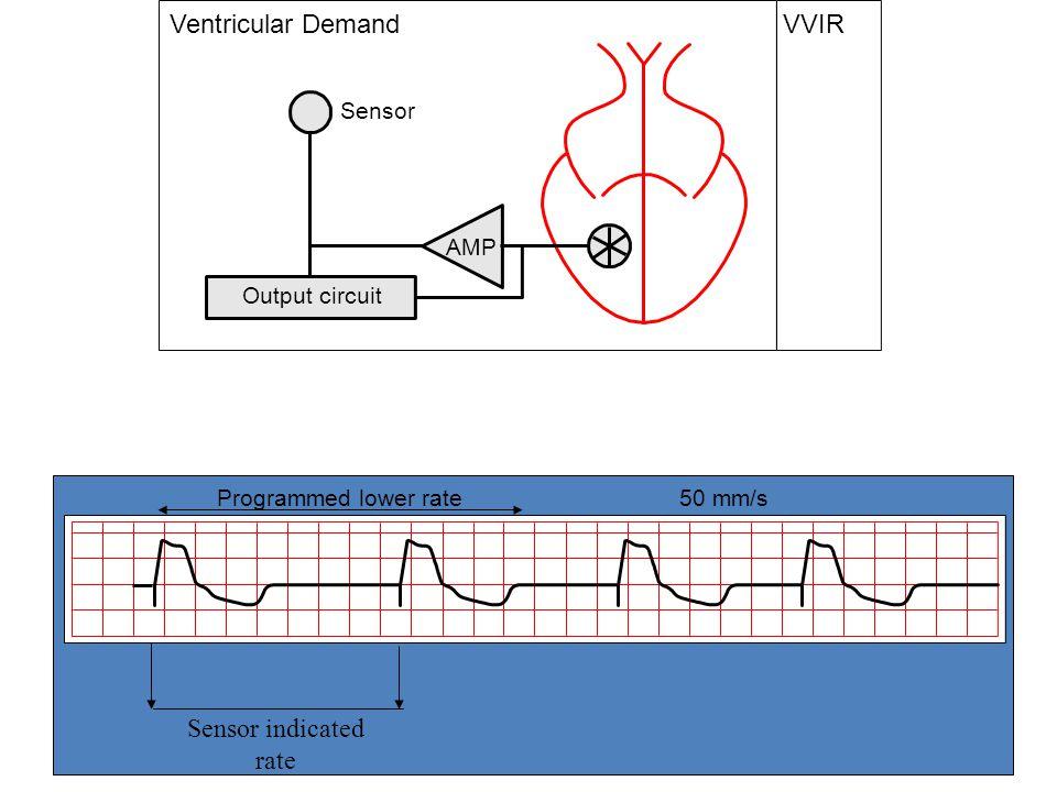 Stuart Allen 06 Output circuit VVIR AMP Sensor Ventricular Demand Pacing Modesp Programmed lower rate 50 mm/s Sensor indicated rate