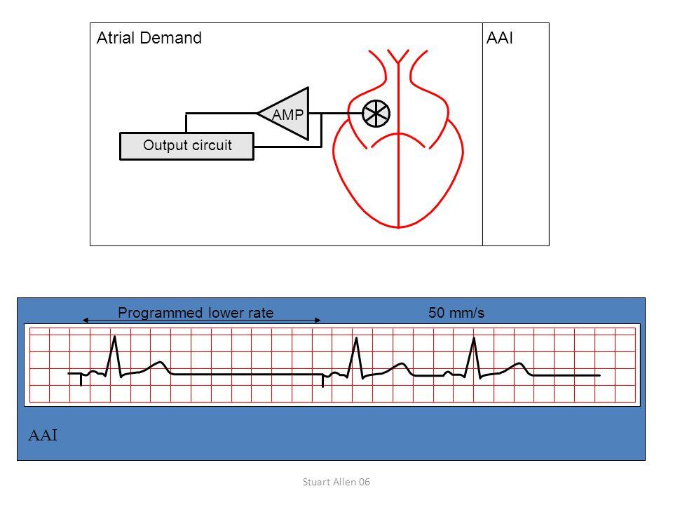 Stuart Allen 06 Output circuit AAI AMP Atrial Demand Programmed lower rate50 mm/s AAI