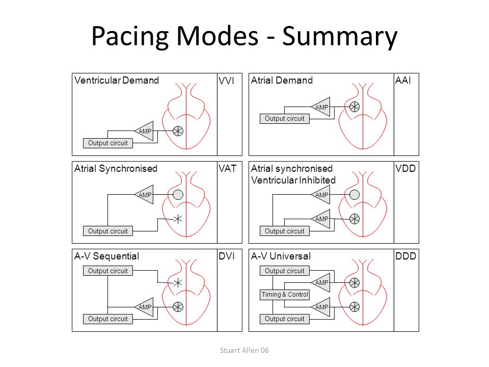 Stuart Allen 06 Pacing Modes - Summary Output circuit VAT AMP Atrial Synchronised Output circuit AAI AMP Atrial Demand Output circuit DVI AMP A-V Sequ