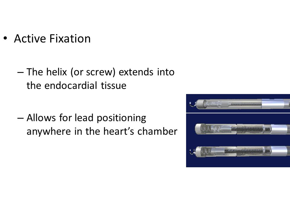 Active Fixation – The helix (or screw) extends into the endocardial tissue – Allows for lead positioning anywhere in the heart's chamber