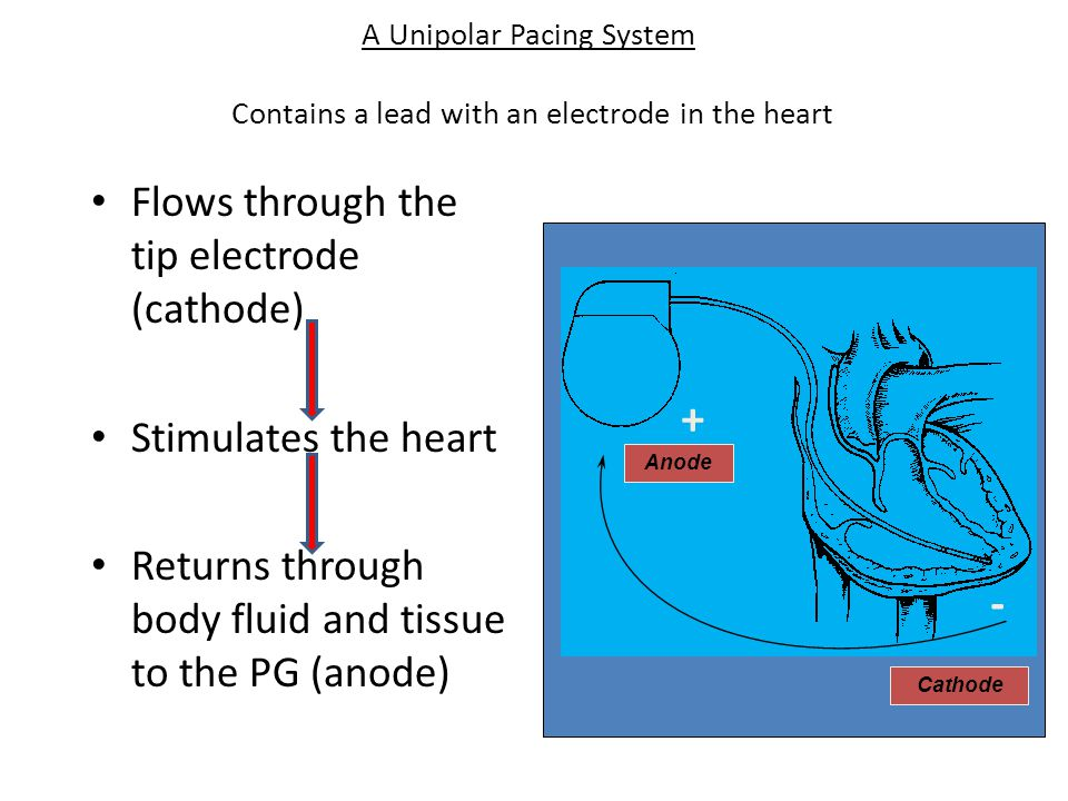 Flows through the tip electrode (cathode) Stimulates the heart Returns through body fluid and tissue to the PG (anode) A Unipolar Pacing System Contai